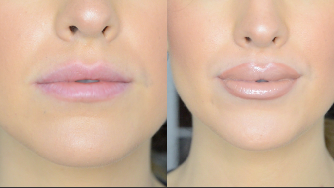 tricks to make your lips look bigger
