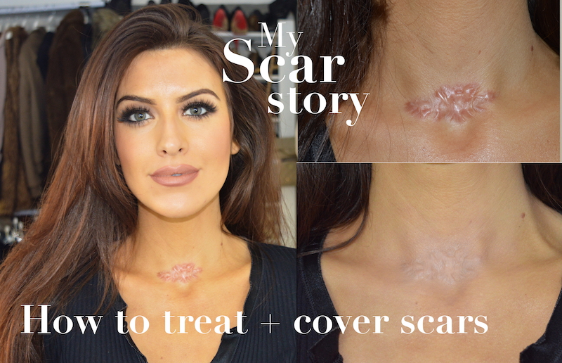 how to cover and treat scars eleise eleise lucraft blogger